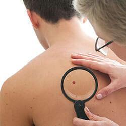 deri kanserleri örnek